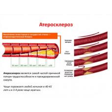 Холестон HISAMITSU - для очищения сосудов, понижение холестерина