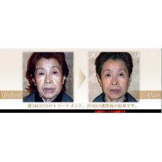 Многофункциональный профессиональный косметологический аппарат Clione Dot